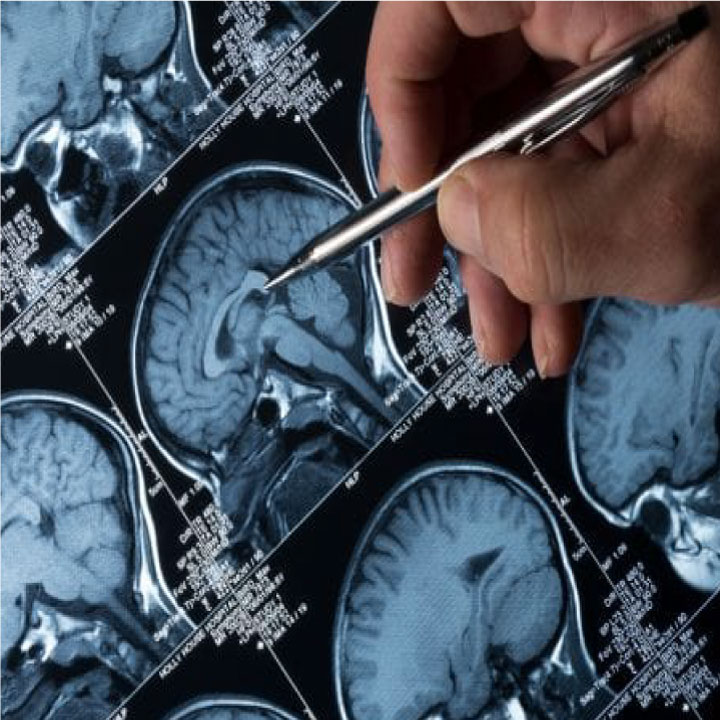 AI for Detecting Alzheimer's Disease – Machine Learning  Python