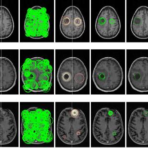 3 D video based brain tumor detection