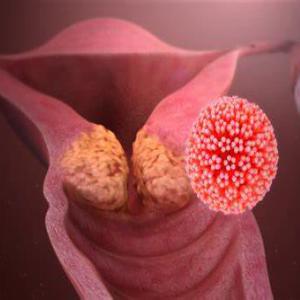 Cervical Cancer Classification using Matlab