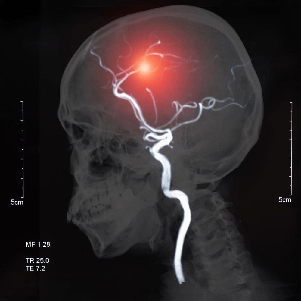 Intelligent brain hemorrhage diagnosis using deep learning