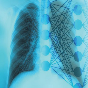 Pneumonia detection in XRay Images using Deep learning