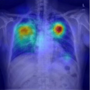 Tuberculosis Detection in XRAY Images using Matlab 1